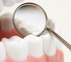 Closeup of flawless dental restoration
