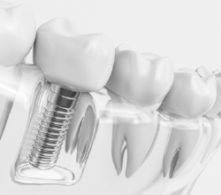 Digital model of dental implant