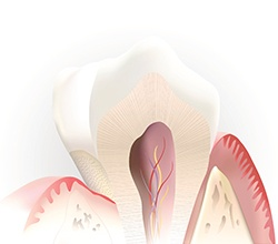 Animation of root canal treatment