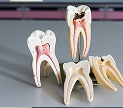 Models of tooth structures